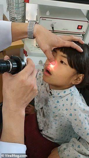 6岁女孩鼻子里长出一条活长虫,手术全程超淡定